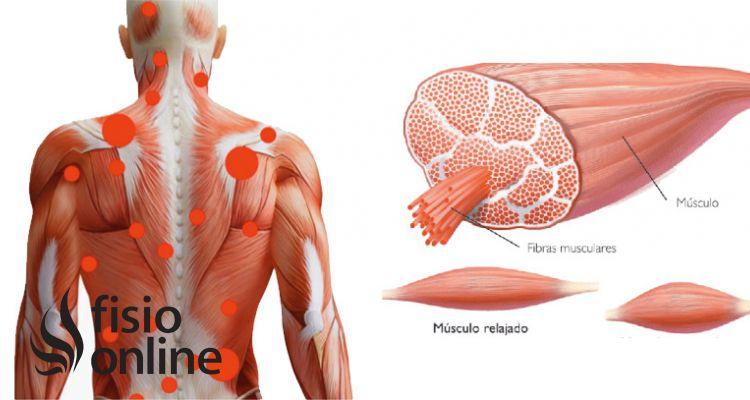 ¿Qué cambios debo hacer para evitar una contractura muscular de espalda?