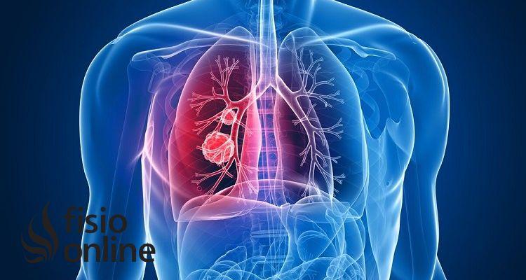 ¿Cómo se diagnostica la Fibrosis Quística?