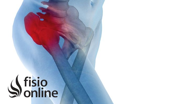 Artrosis de cadera o coxartrosis. Síntomas, Diagnóstico y ...