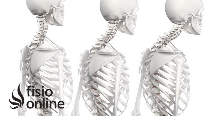Alteración de la postura corporal  (1ª parte)