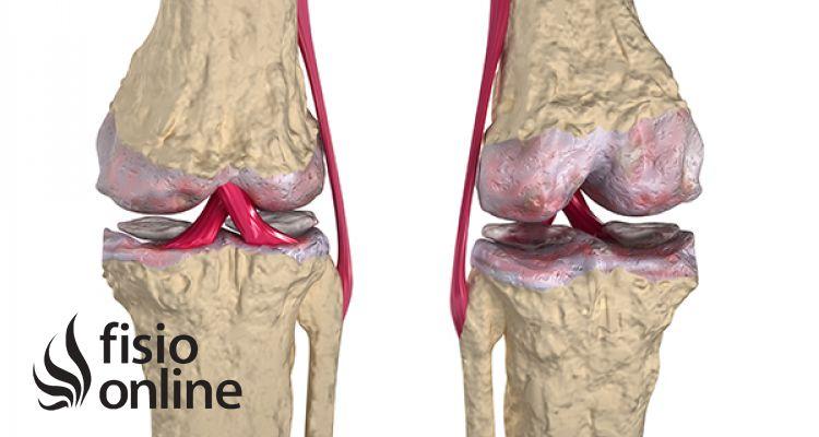 Artrosis. Qué es, causas, síntomas y tratamiento quirúrgico y de fisioterapia