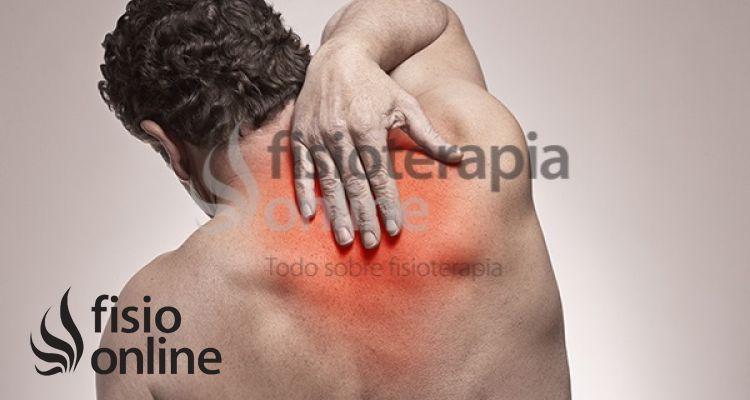 "Dorsalgia: Ese misterioso dolor ""Entre las paletillas"""