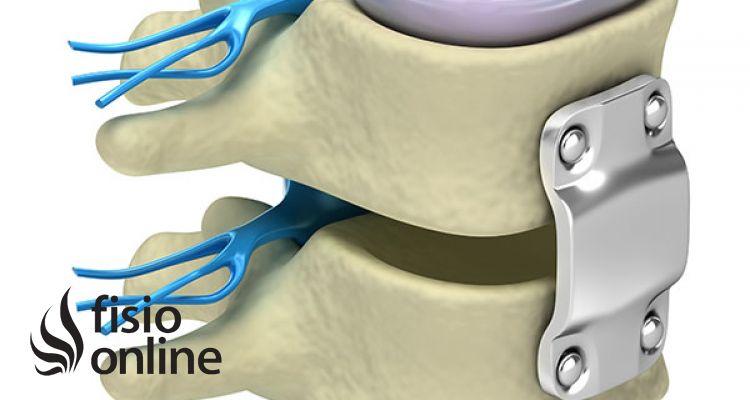 Artrodesis. Qué es, indicaciones, riesgos y ejercicios de fisioterapia