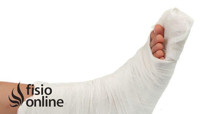 7 consejos para ayudarte a sanar (más rápido) una fractura ósea