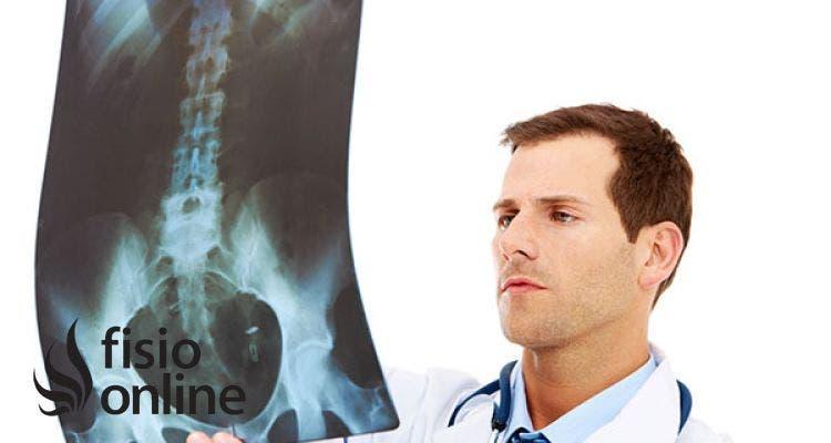 Dismetría de las piernas o extremidades inferiores. Causas, síntomas y tratamiento.