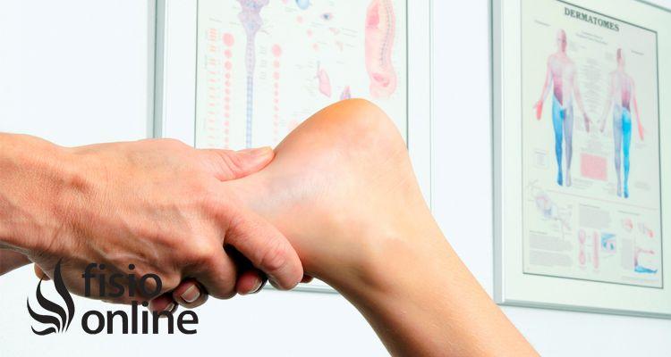 Pie cavo, excavado o hueco: qué es y tratamiento en fisioterapia
