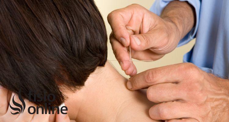Punción seca en el tratamiento de la cefalea tensional