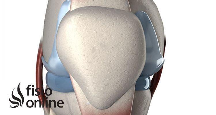 Lo que necesitas saber sobre la tendinitis rotuliana