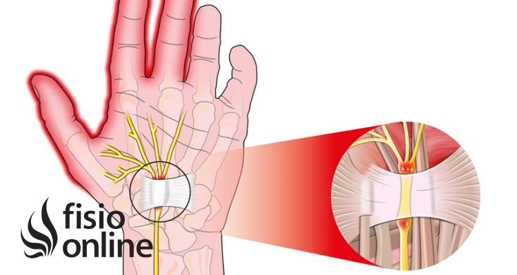 Sindrome del túnel carpiano. Ejercicios y tratamiento recomendado
