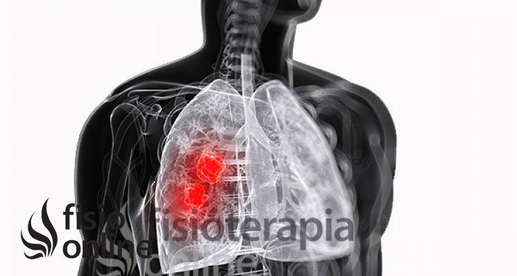 ¿Qué es un Absceso Pulmonar?
