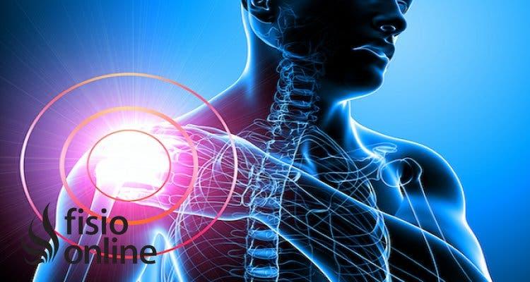 ¿Cómo ayuda la fisioterapia a aliviar el dolor de hombro ocasionado por tendinitis y bursitis?
