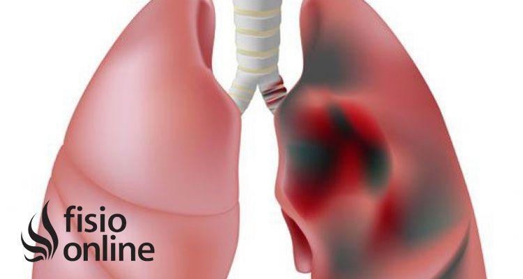 Rehabilitación Pulmonar y EPOC, una estrecha amistad