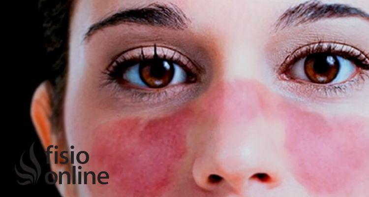 ¿Cómo vivir con lupus eritematoso?