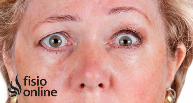 ¿Qué es una Ptosis palpebral? Causas, síntomas y tratamiento fisioterapéutico