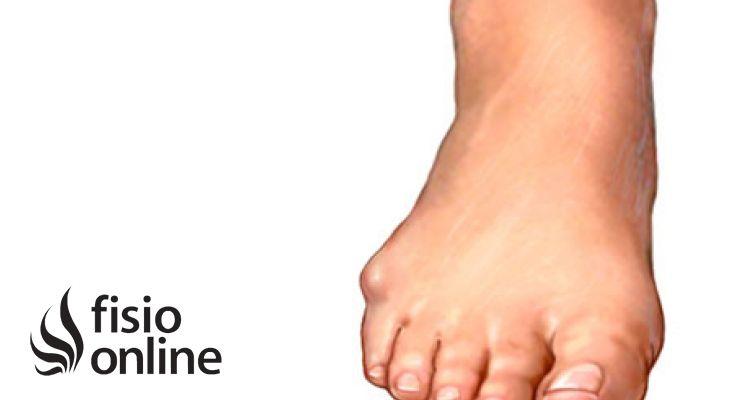 Juanete de sastre qu es causas s ntomas y tratamiento for Operacion de pies