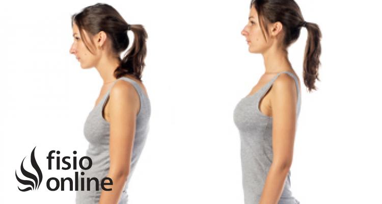 Hipercifosis Dorsal. Qué es, tipos y ejercicio recomendado