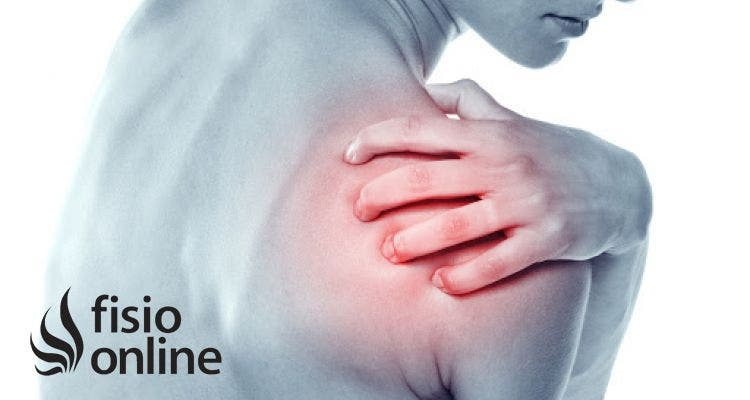 ¿Qué puedo hacer para prevenir que aparezca la tendinitis del manguito rotador?
