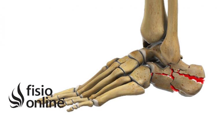 Fracturas del calcáneo: ¿Cuáles son los tipos de fracturas de calcáneo?
