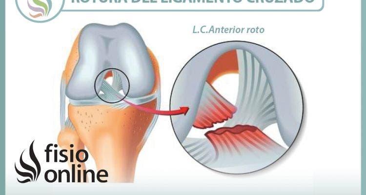 Rotura del ligamento cruzado de la rodilla, información consejos y un útil vídeo sobre el tema