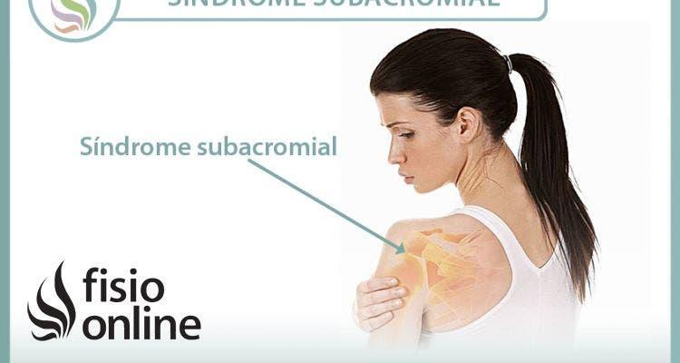 El síndrome subacromial. Aprende qué es, cómo se produce y qué puedes hacer para un correcto tratamiento