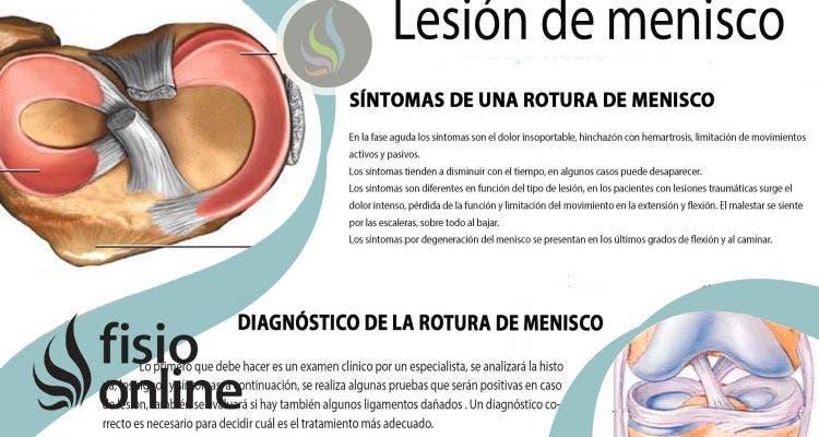 Lesión y rotura de Menisco: Consejos y tratamiento fisioterapéutico