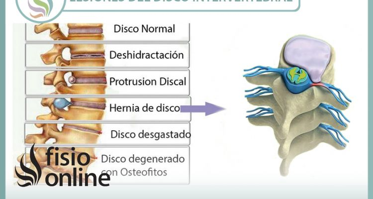 Lesiones más frecuentes del disco intervertebral