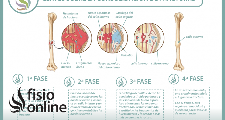 ¿Sabes cómo se consolidan o recuperan las fracturas de huesos? Descubre cómo ocurre