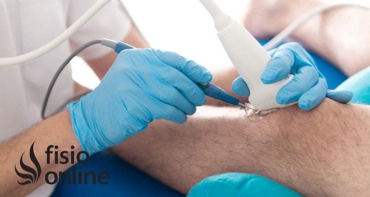 Electrólisis Percutánea Intratisular (EPI) en el tratamiento de las tendinopatías