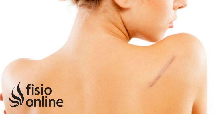 El proceso de cicatrización y la influencia de la fisioterapia en el mismo