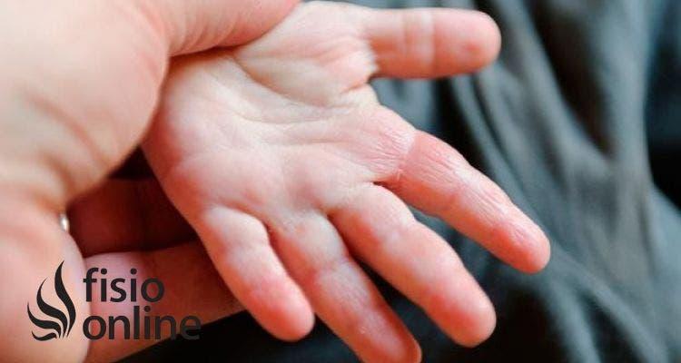 La Artritis Idiopática Juvenil: Toda la información que necesitas conocer