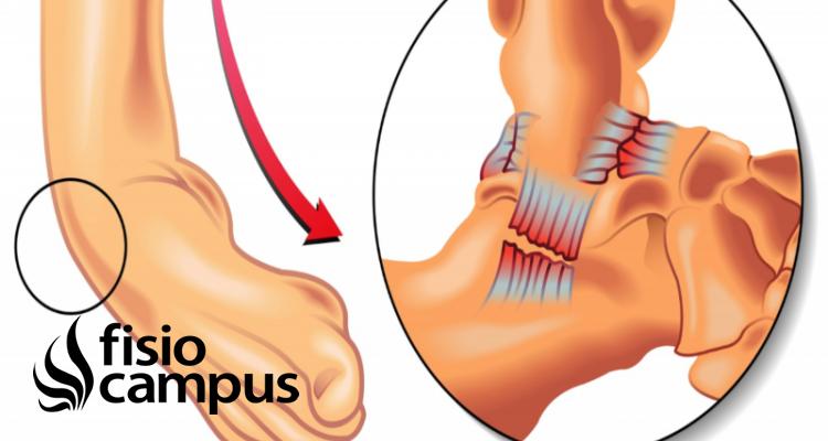 distensión de ligamentos