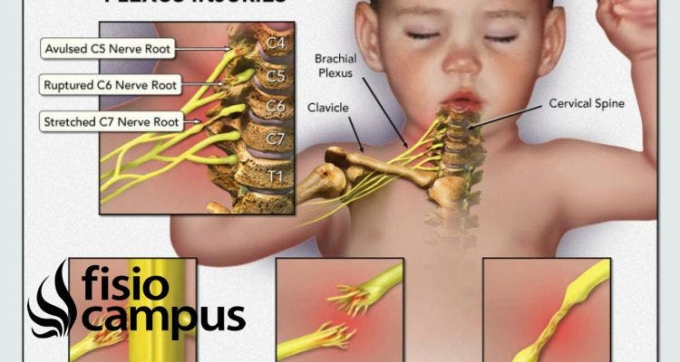 parálisis braquial obstétrica