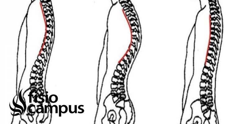 rectificación de columna vertebral