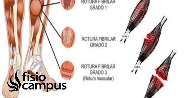 Rotura de fibras