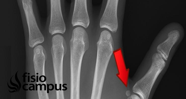 Huesos sesamoideos