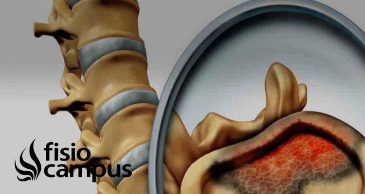 tumores de médula ósea