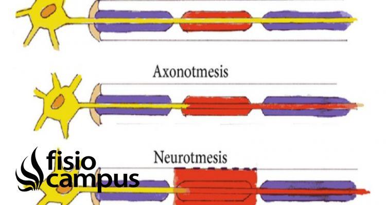 axonotmesis