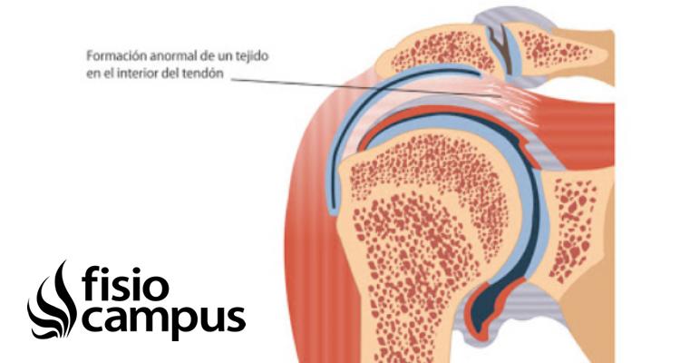 calcificación tendinosa