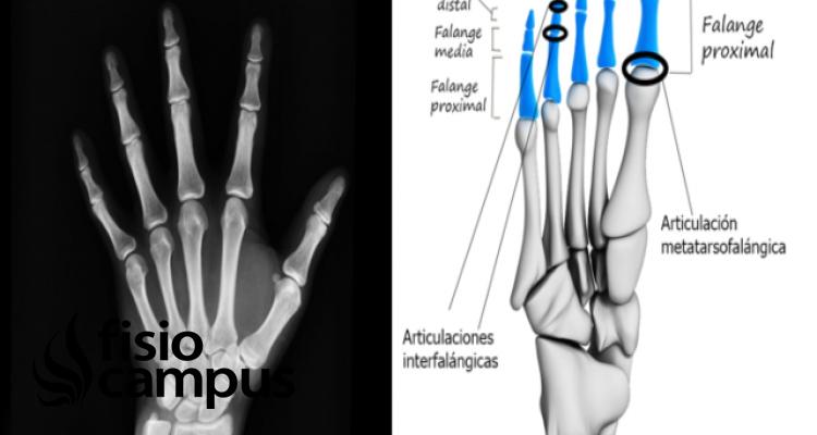 Huesos Falanges