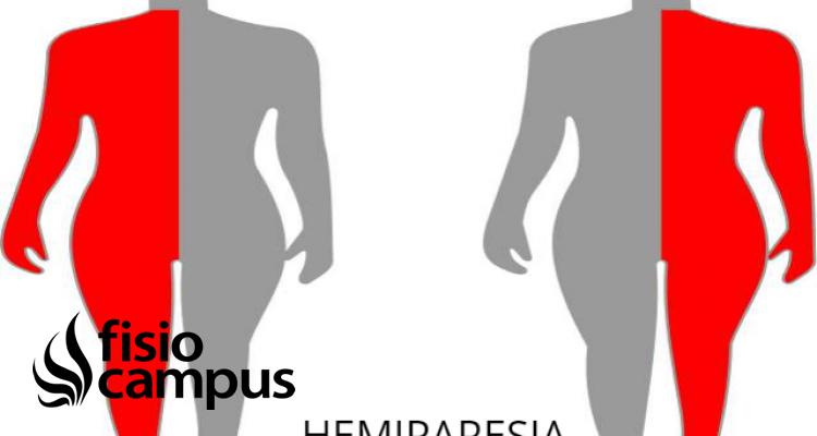 hemiparesia