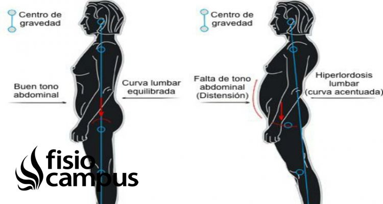 hiperlordosis