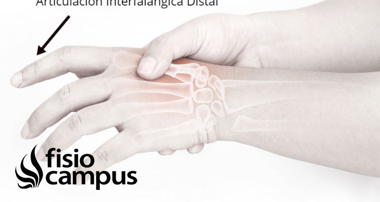 articulación interfalángica distal