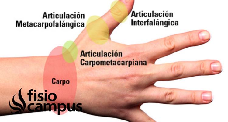 Articulación Metacarpofalángica