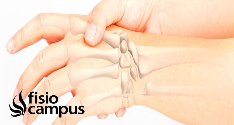 Huesos del metacarpo