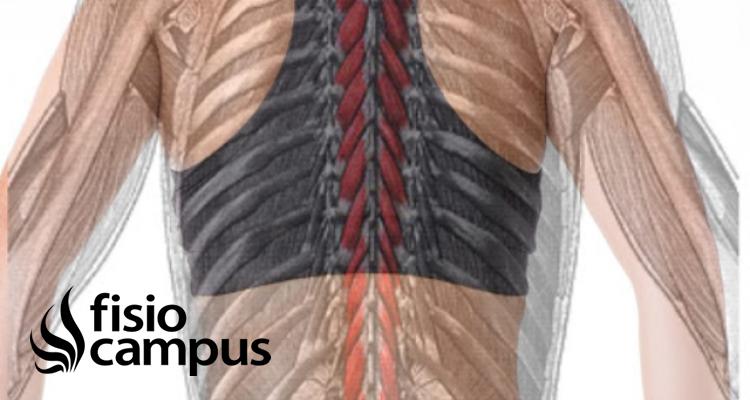 músculos multífidos