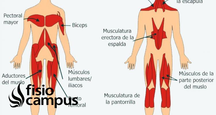 músculos tónicos