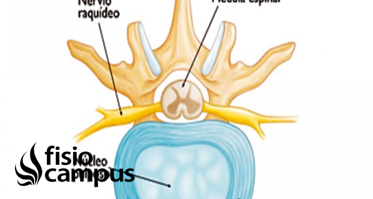 núcleo pulposo