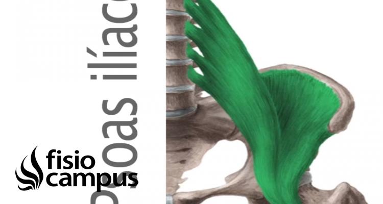Músculo psoas ilíaco