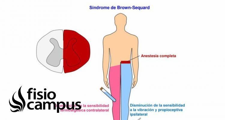 síndrome Brown Sequard
