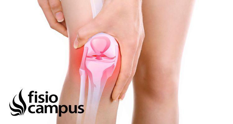 ¿Qué es una bursitis de rodilla? Causas, diagnóstico y tratamiento en fisioterapia y medicina